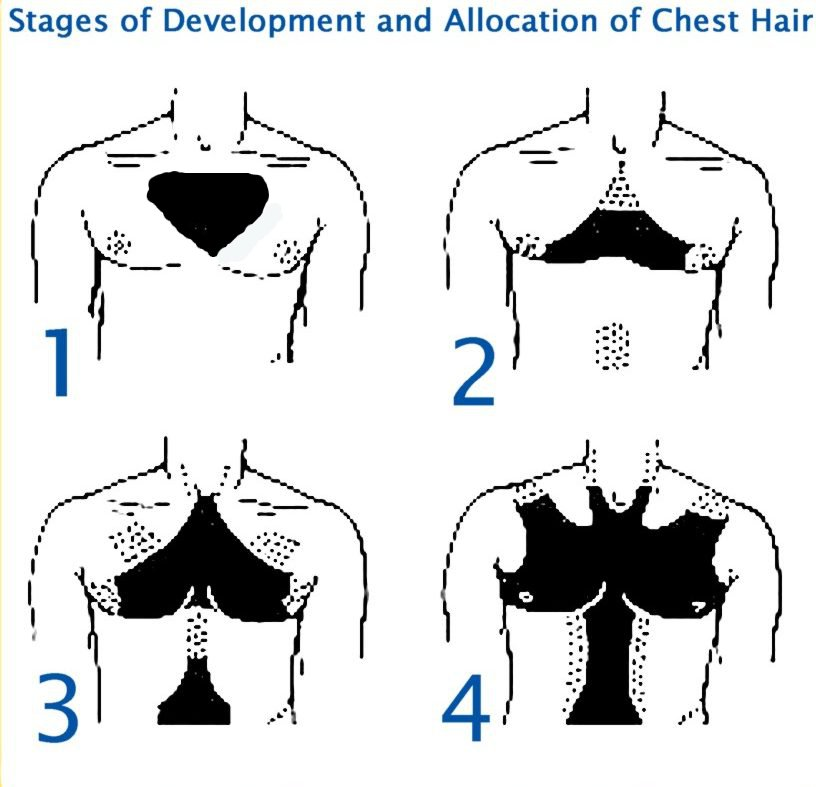Gents What Chest Hair Pattern Do You Have