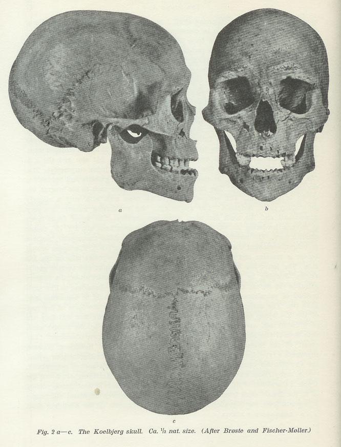 череп арийский картинка ряд